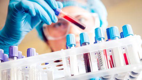 Covid-19 antikehateraapia võib olla sügisel saadaval, kui kõik läheb plaani kohaselt.