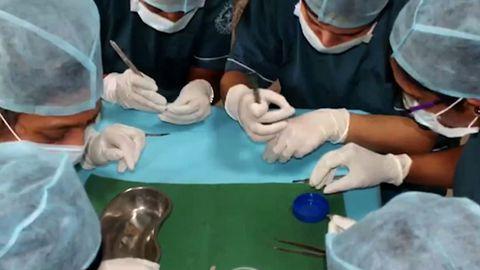 7-aastase Ravindrani suust eemaldati Saveetha hambakolledžis Chennais Lõuna-Indias rohkem kui 500 hammast.