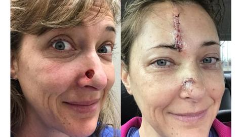42-aastast Janetit tabas nahavähi vorm nimega basaalrakk-kartsinoom.