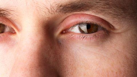 12 põhjust, miks su silmalaud on aeg-ajalt paistes.