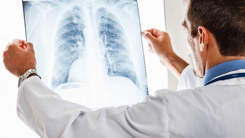 Uuritakse uue ravikombinatsiooni tõhusust kopsuvähi ravis.