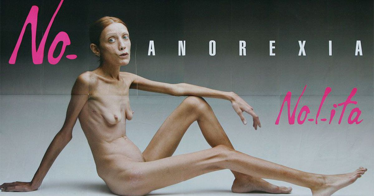 Anorexic man naked — pic 5