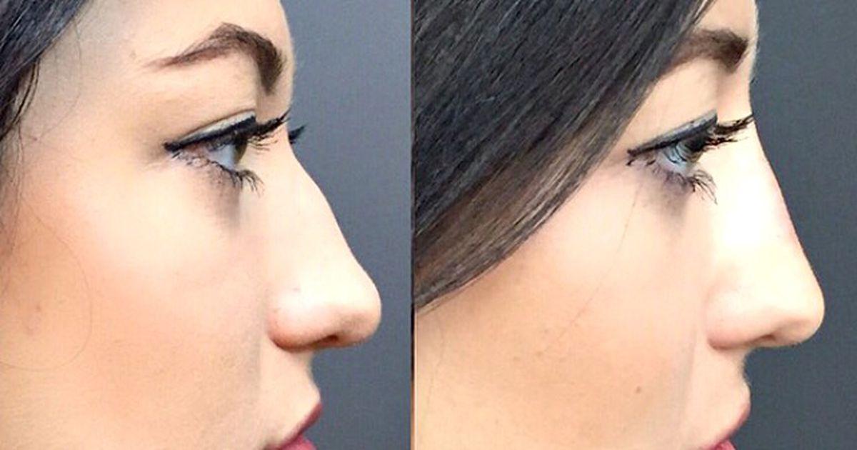 пластика носа филлерами фото рецептах суши очень